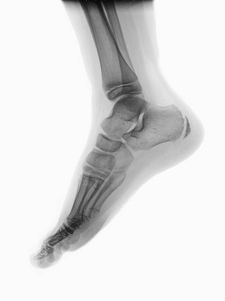 Foot Human foot on roentgenogram coot stock pictures, royalty-free photos & images
