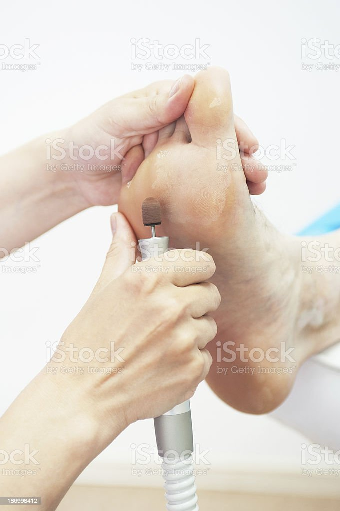 foot procedure royalty-free stock photo