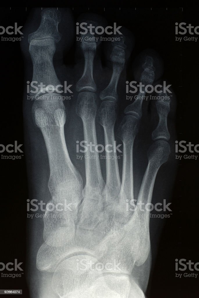 Foot Radiograph Stock Photo & More Pictures of Anatomy | iStock