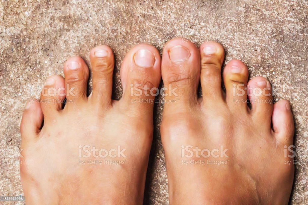 Foot, Rheumatoid foot disease background. stock photo