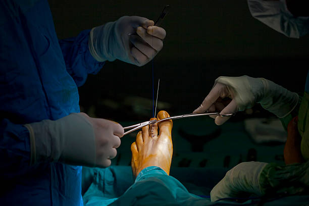 Foot Surgeon Orthopedic surgeon during stitching a surgical wound deem stock pictures, royalty-free photos & images