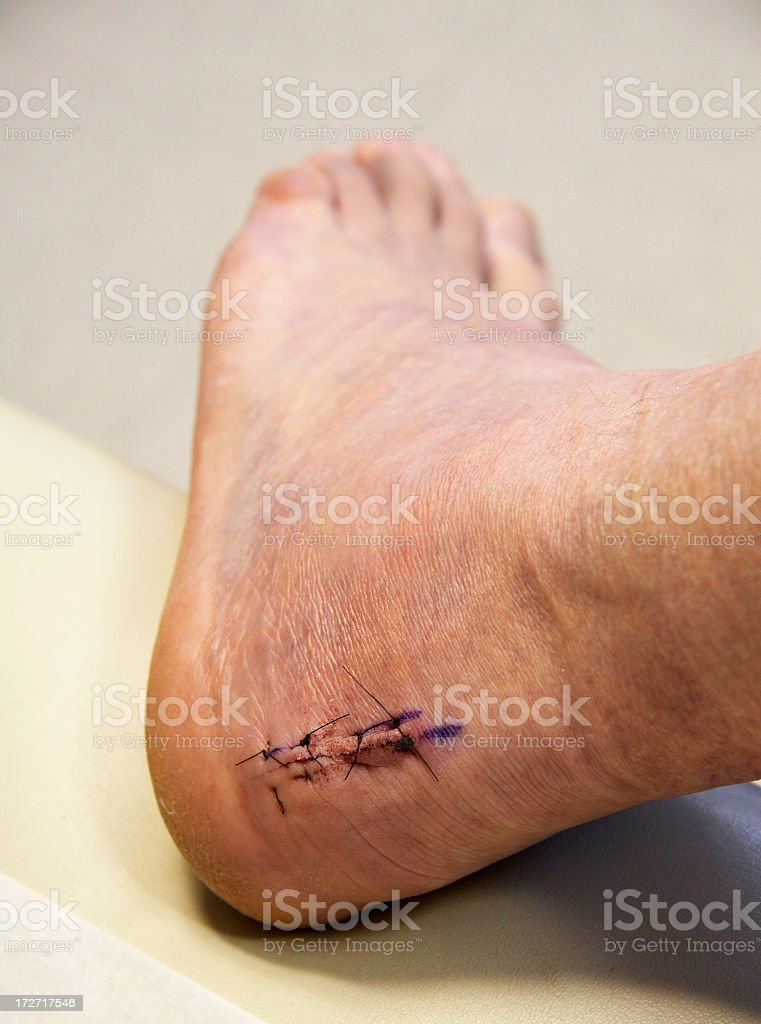 foot surgery achilles heel stock photo