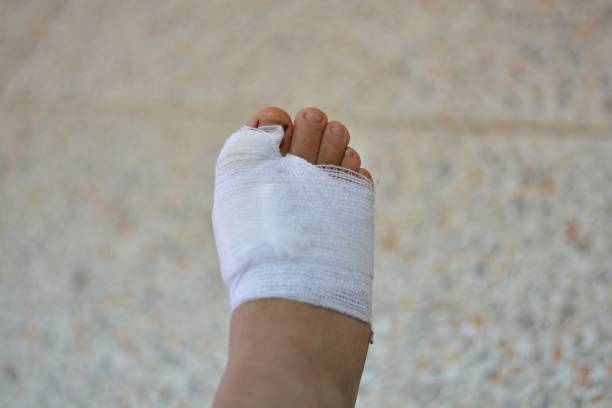 Foot ulcer background blurred stock photo