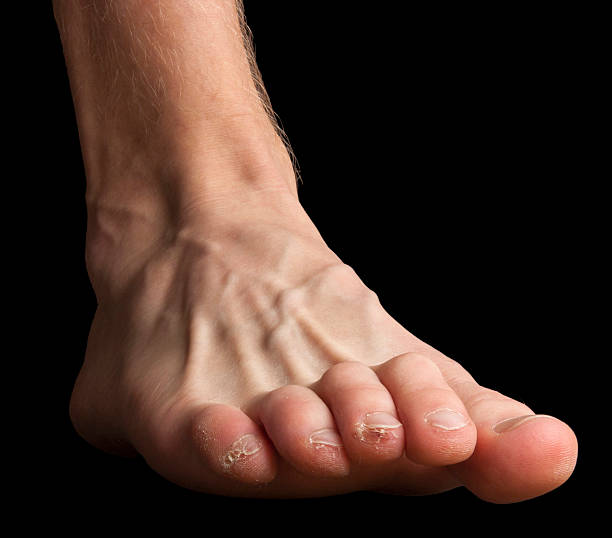 Foot with broken skin on toes stock photo
