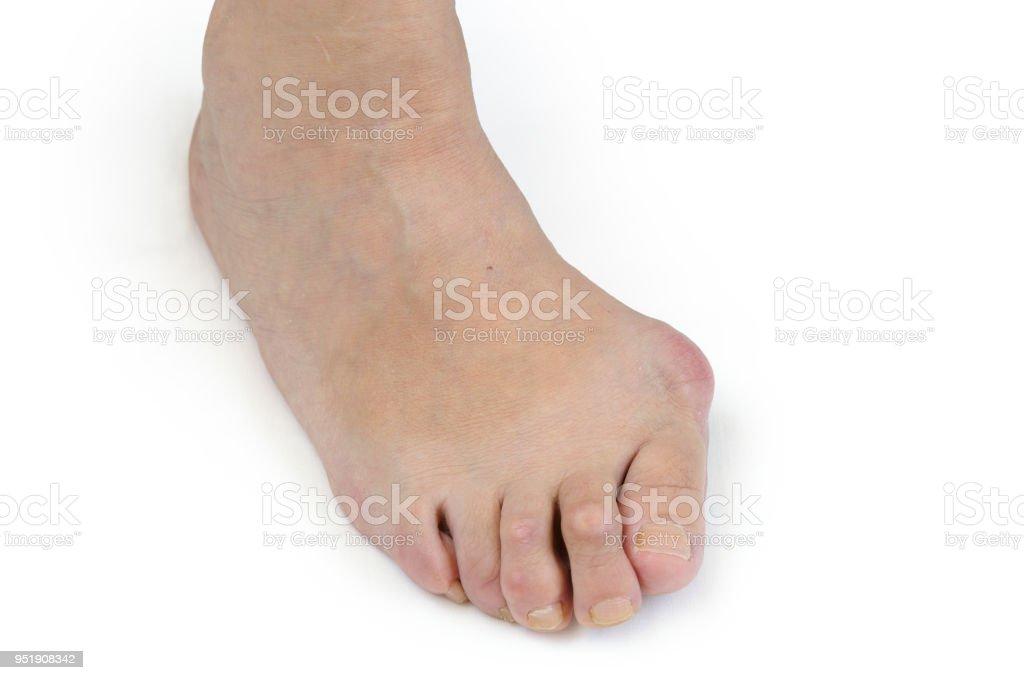 Foot with bunion (Hallux valgus) stock photo