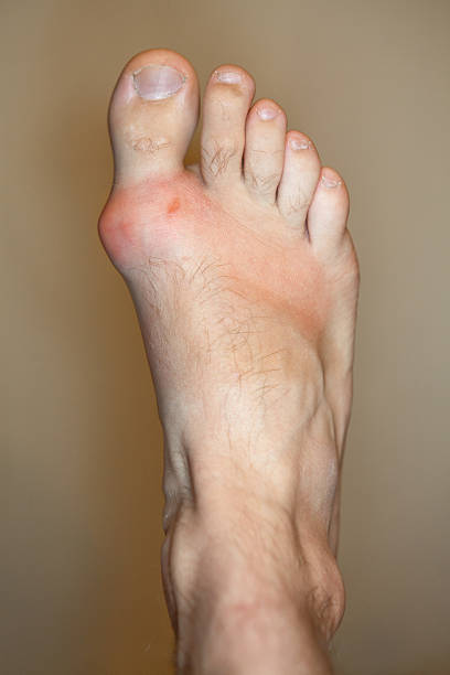 Foot with Gout and Bunion Big toe joint inflamed with gout and small ulceration. gout stock pictures, royalty-free photos & images