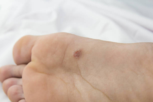 foot with problem areas on the skin.close up foot with problem areas on the skin.close up wart stock pictures, royalty-free photos & images