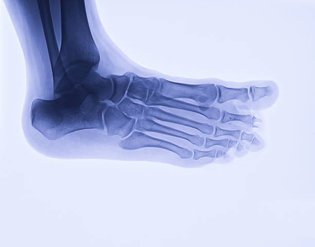 foot x-ray image, oblique view - os du pied photos et images de collection