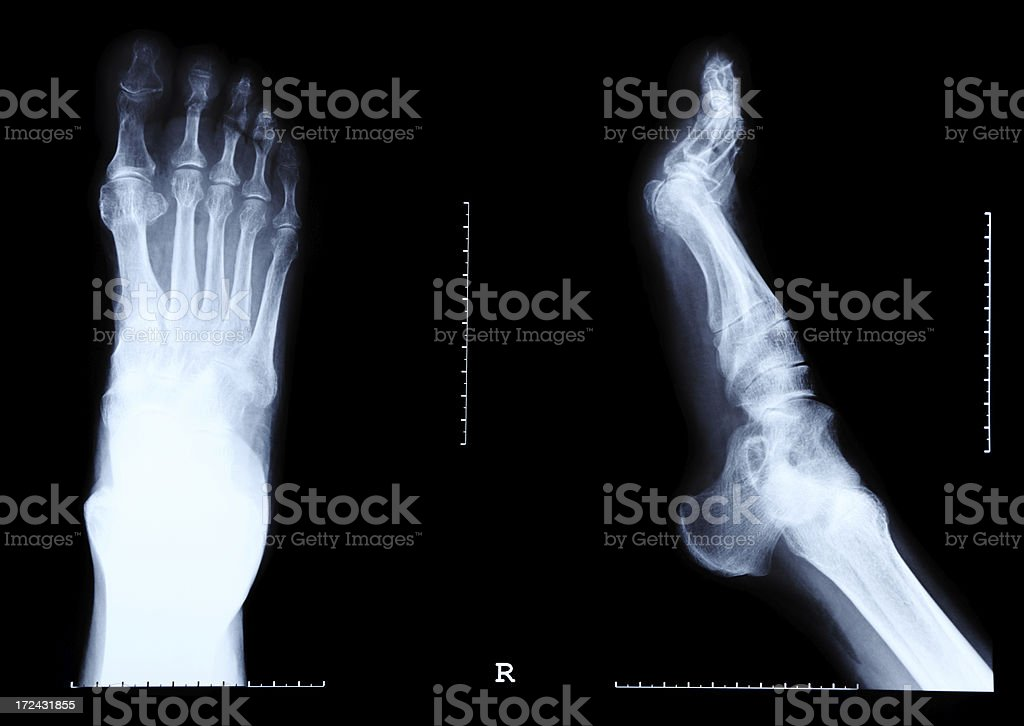 Foot X-Ray Image royalty-free stock photo