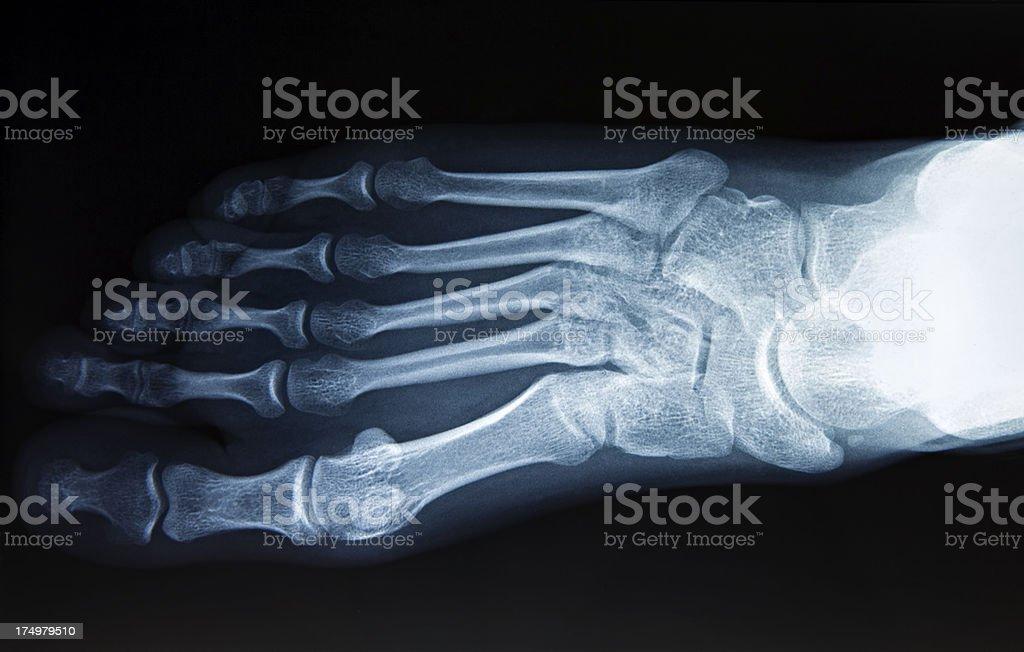 foot x-ray image stock photo