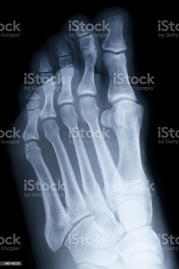 Perfect Foot X Ray Anatomy Inspiration - Anatomy And Physiology ...