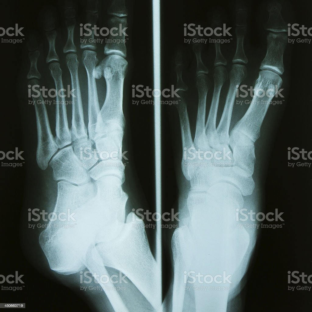 Foot Xray Stock Photo More Pictures Of Anatomy Istock