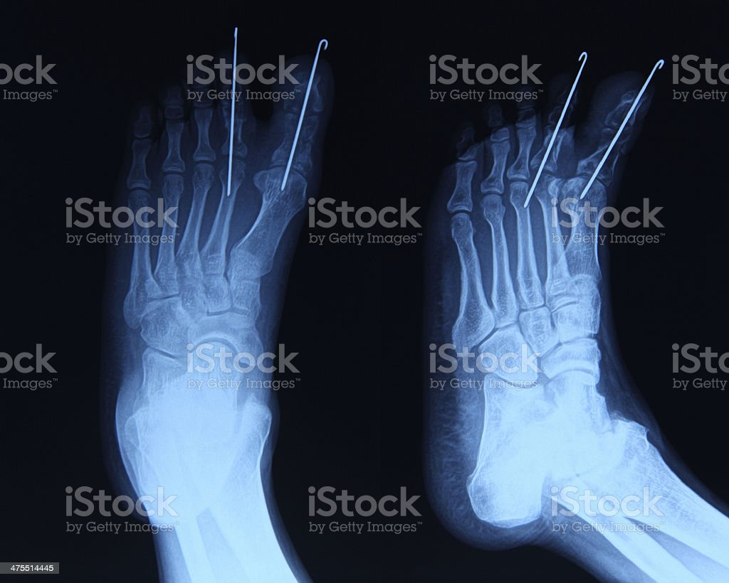 Foot xray royalty-free stock photo