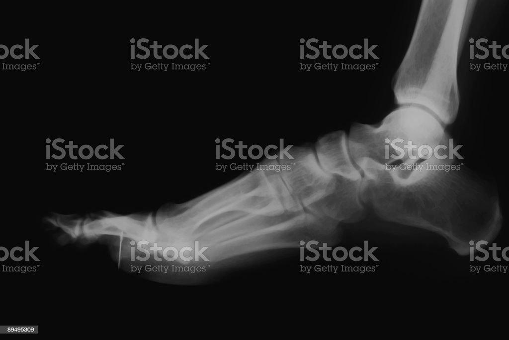 foot  x-ray royalty free stockfoto