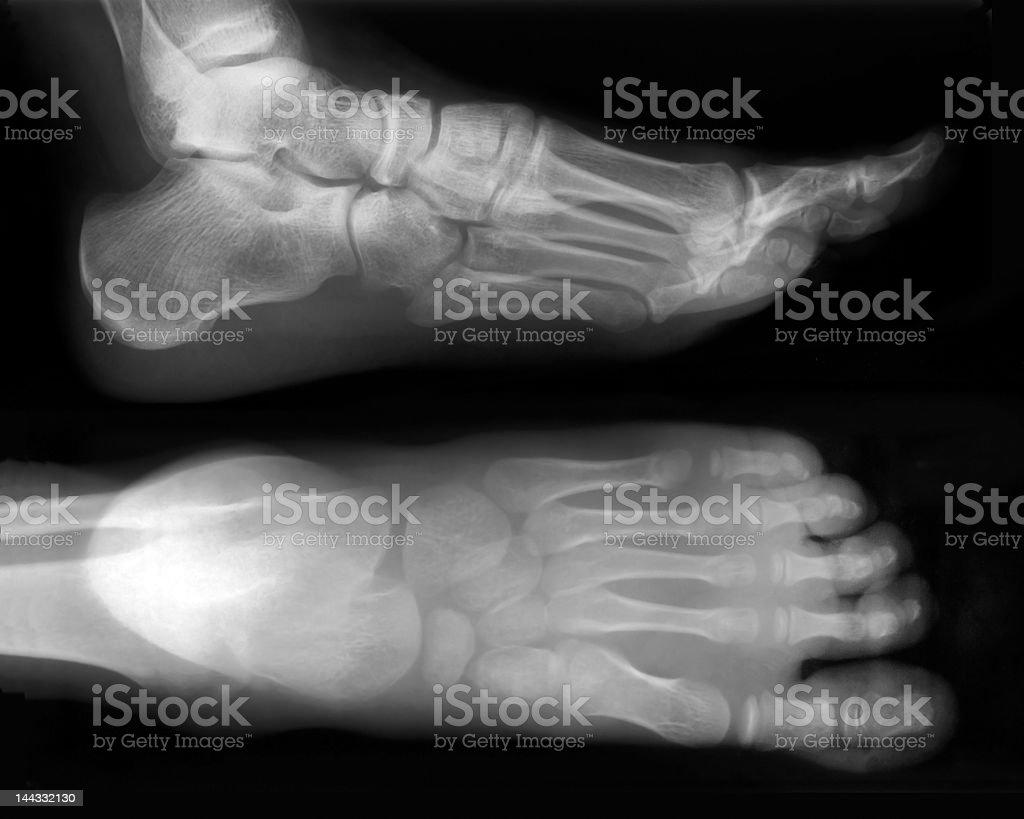Foot-X-Ray stock photo