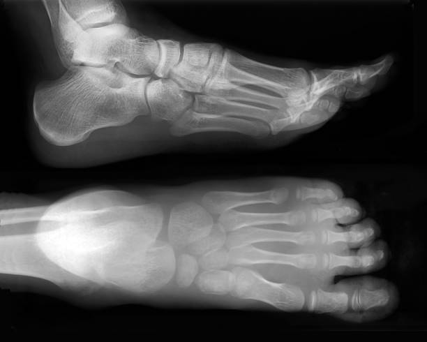 pied-x-ray - os du pied photos et images de collection