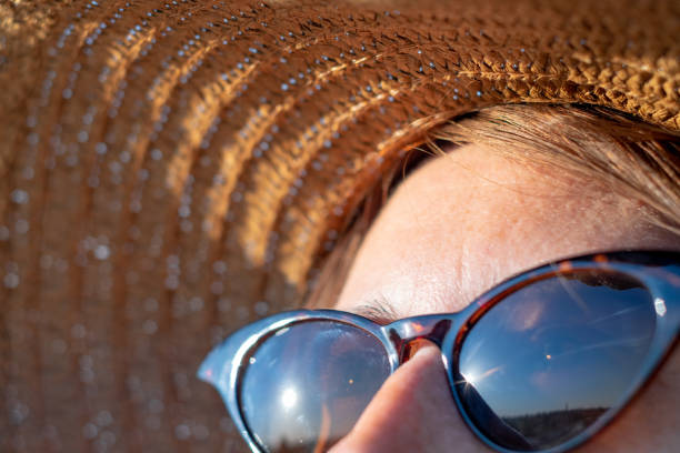 Forehead of a woman with freckles in direct sunlight, close-up view. UV protection, sun radiation concept: skin with lentigo in the summer sun dark spots face stock pictures, royalty-free photos & images