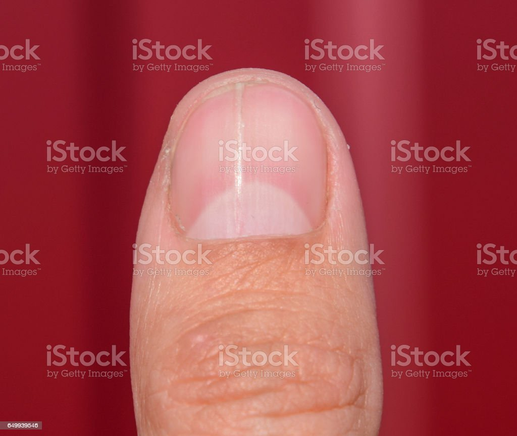 Forked Nail On The Thumb Dilation Of The Nail Traumatic Pathology ...