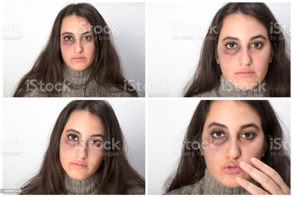 Four portraits of an abused woman stock photo