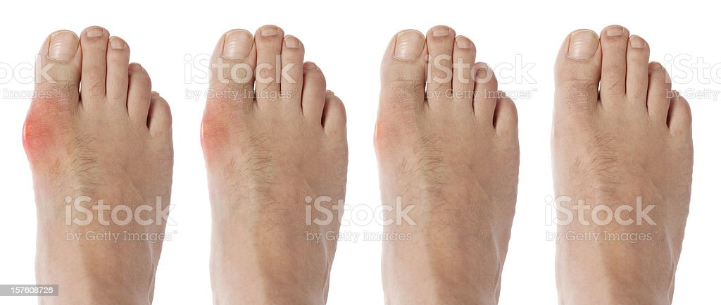 four stages orf gout arthritis stock photo