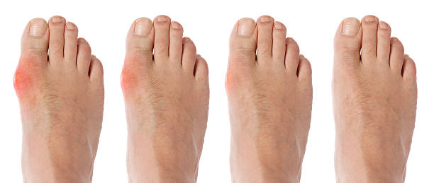 four stages orf gout arthritis Healing process of gout arthritis on toe joint gout stock pictures, royalty-free photos & images