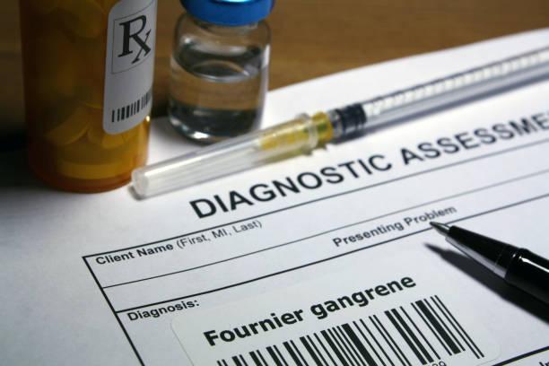 el tratamiento de gangrena fournier - gangrena fotografías e imágenes de stock