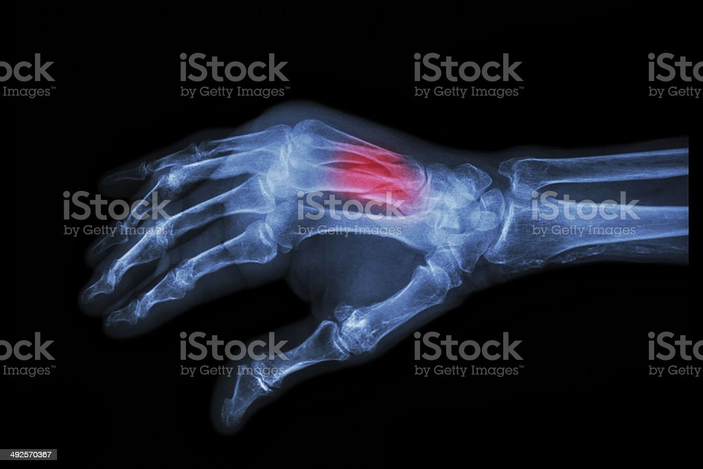 Fracture at 3rd and 4th metacarpal bone stock photo