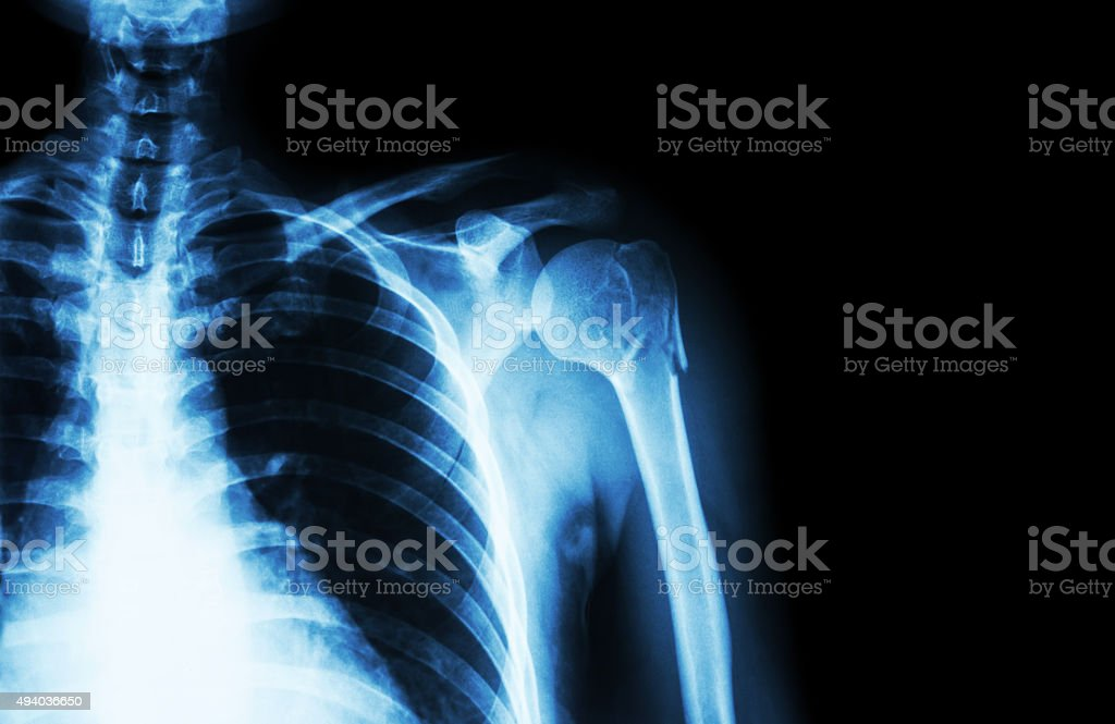 Fracture at neck of humerus ( arm bone ) stock photo