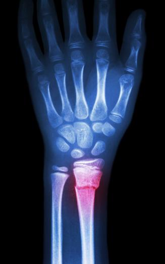 fiilm x-ray wrist show fracture distal radius (forearm's bone)