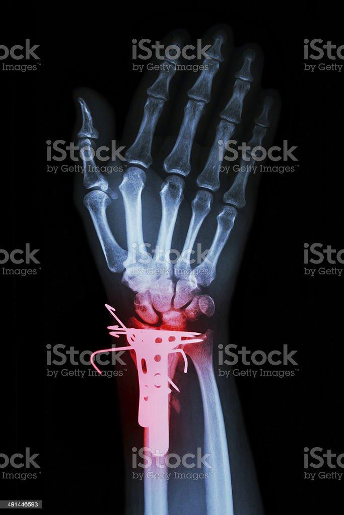 fracture distal radius (forearm's bone) stock photo