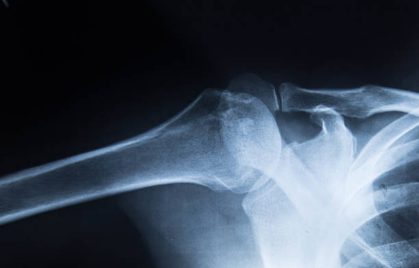 Fracture left clavicle stock photo