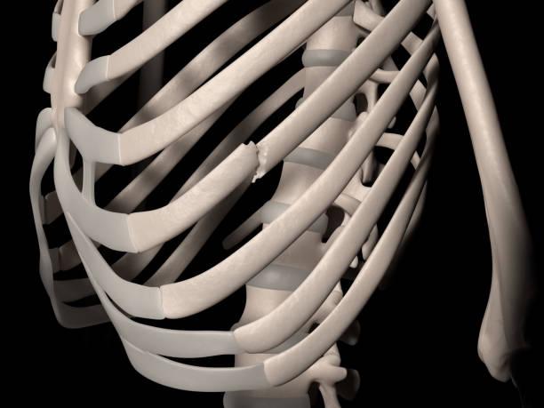 Fracture of 7th rib (true rib) stock photo