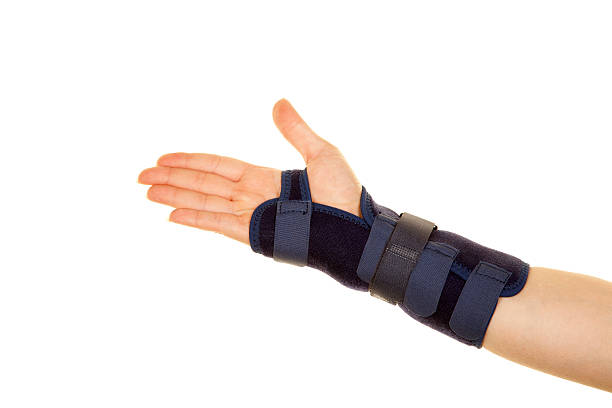 Fracture of arm stock photo