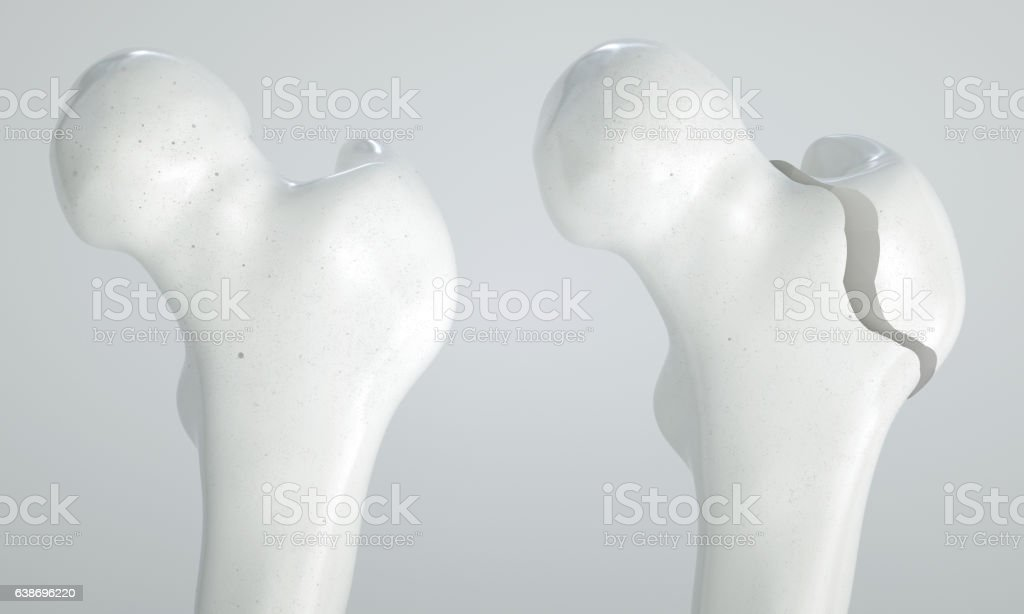 Fracture of the femur - breakpoints 1  4 - 3D stock photo
