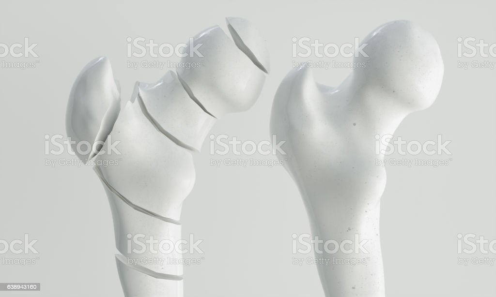 Fracture of the femur - breakpoints - 3D Rendering stock photo