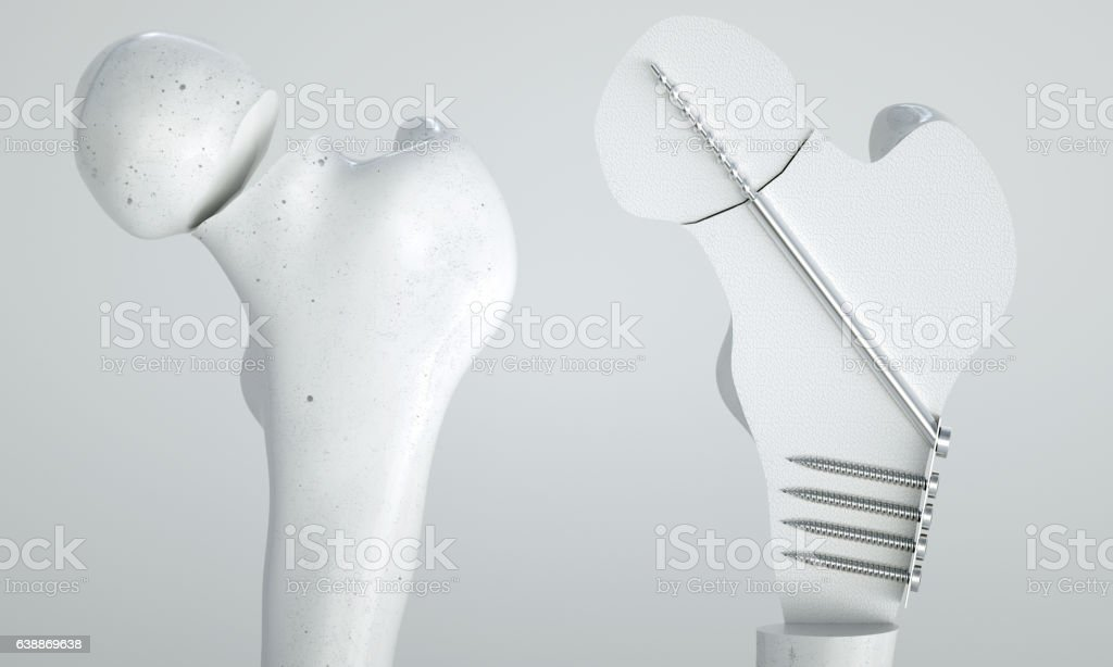 Fracture of the femur - Treatment with screws - 3D stock photo