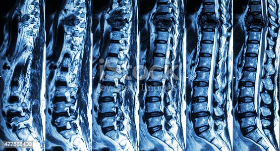 istock fracture of thoracic spine and compress spinal cord 477868400