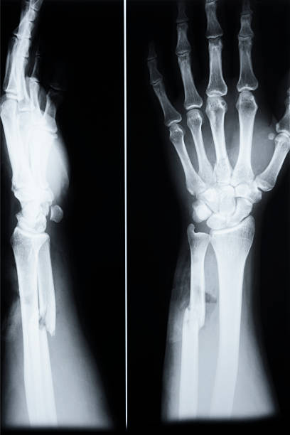 Fracture Of Ulna(Arm) and third metacarp(hand) stock photo