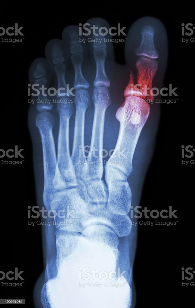 fracture proximal phalange at first toe stock photo