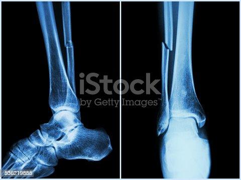 istock Fracture shaft of fibula bone ( leg bone ) 536219885