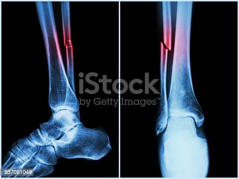 istock Fracture shaft of fibula bone ( leg bone ) 537061049