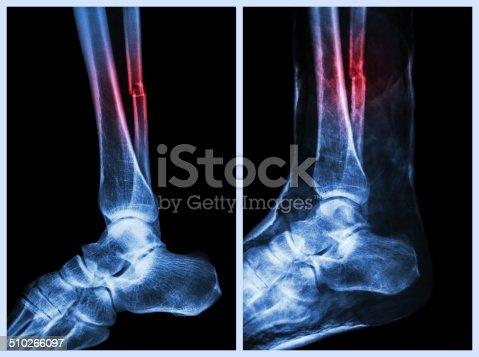 istock Fracture shaft of fibula (calf bone) 510266097