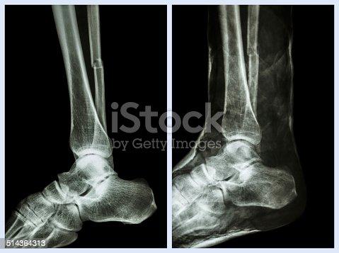 istock Fracture shaft of fibula (calf bone) 514364313