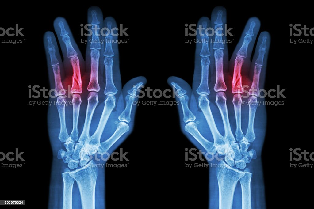 Fracture shaft of proximal phalange of ring finger stock photo