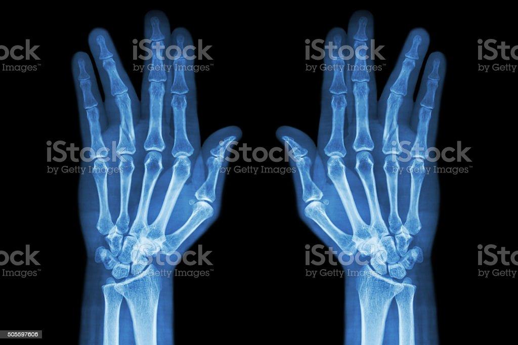 Fracture shaft of proximal phalange of ring finger stock photo
