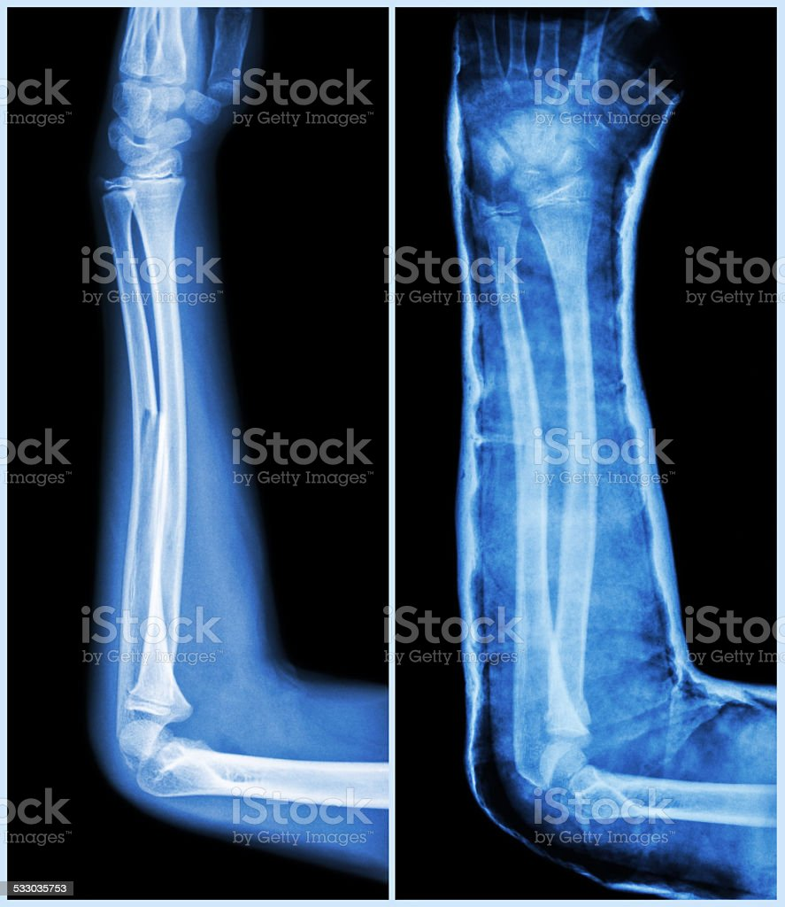 Fracture Shaft Of Ulnar Bone Stock Photo More Pictures Of 2015