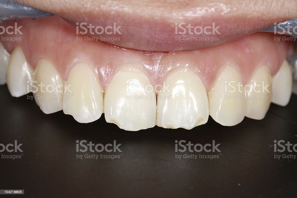 fracture tooth stock photo