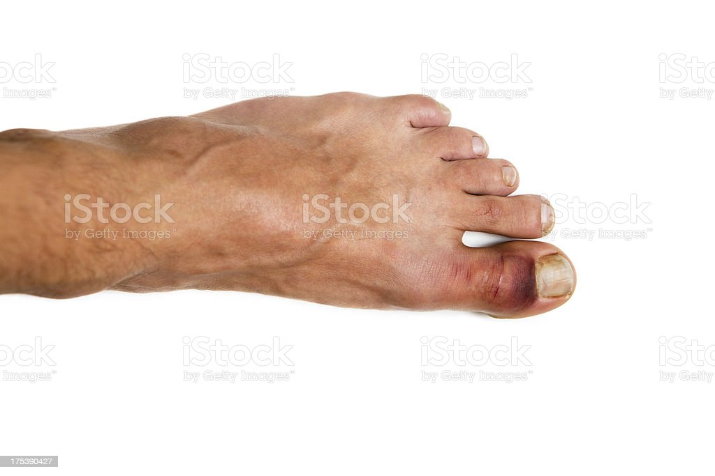 fractured toe with bruise stock photo