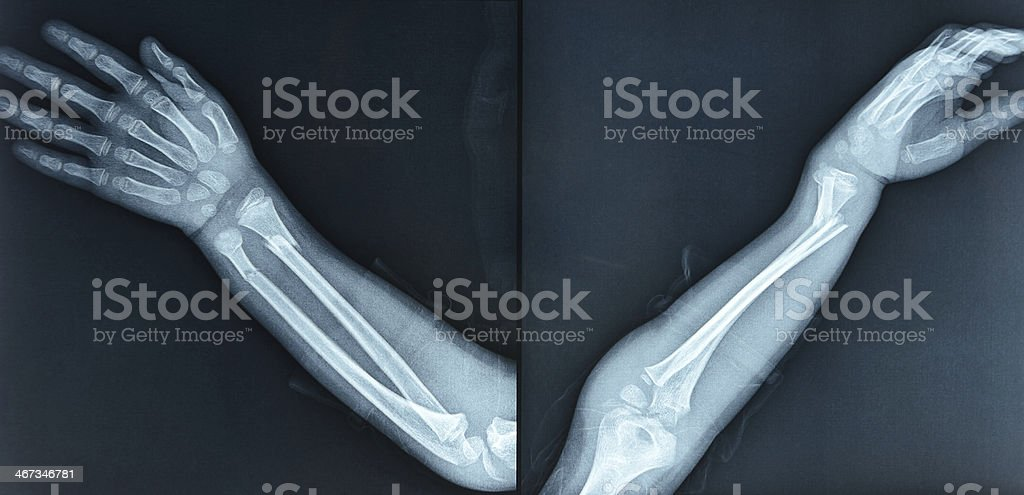 Fractures of the radius ulna stock photo