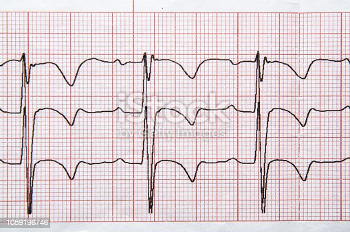 495956356 istock photo Fragment of a normal children's electrocardiogram with arrhythmia elements. 1059196746